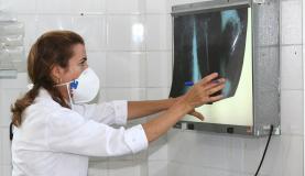 Médica examina radiografia de pulmão de paciente com tuberculose