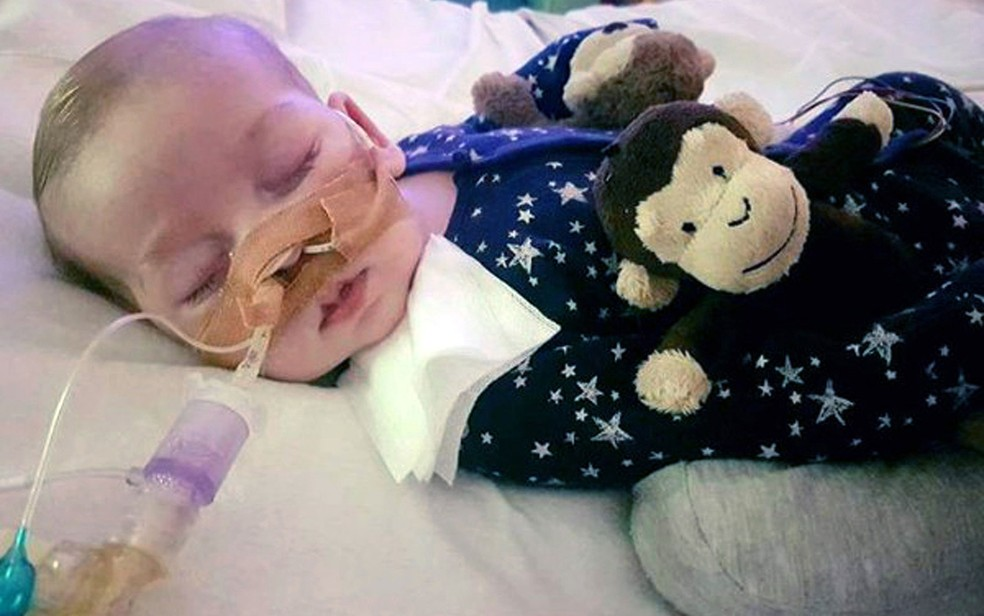 Síndrome rara de Charlie Gard, de 11 meses, causa comoção em todo o mundo