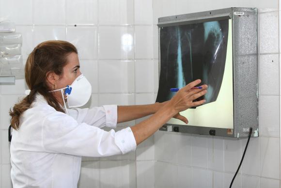 É necessário ficar atento aos sintomas da tuberculose para dar início ao tratamento e, com isso, interromper a contaminação das outras pessoas