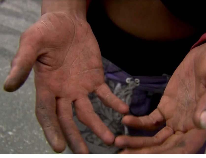 Mãos do garoto após tortura