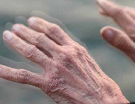O Mal de Parkinson é a segunda mais comum das doenças neurodegenerativas
