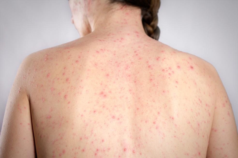 Manchas vermelhas pelo corpo são sintoma de sarampo