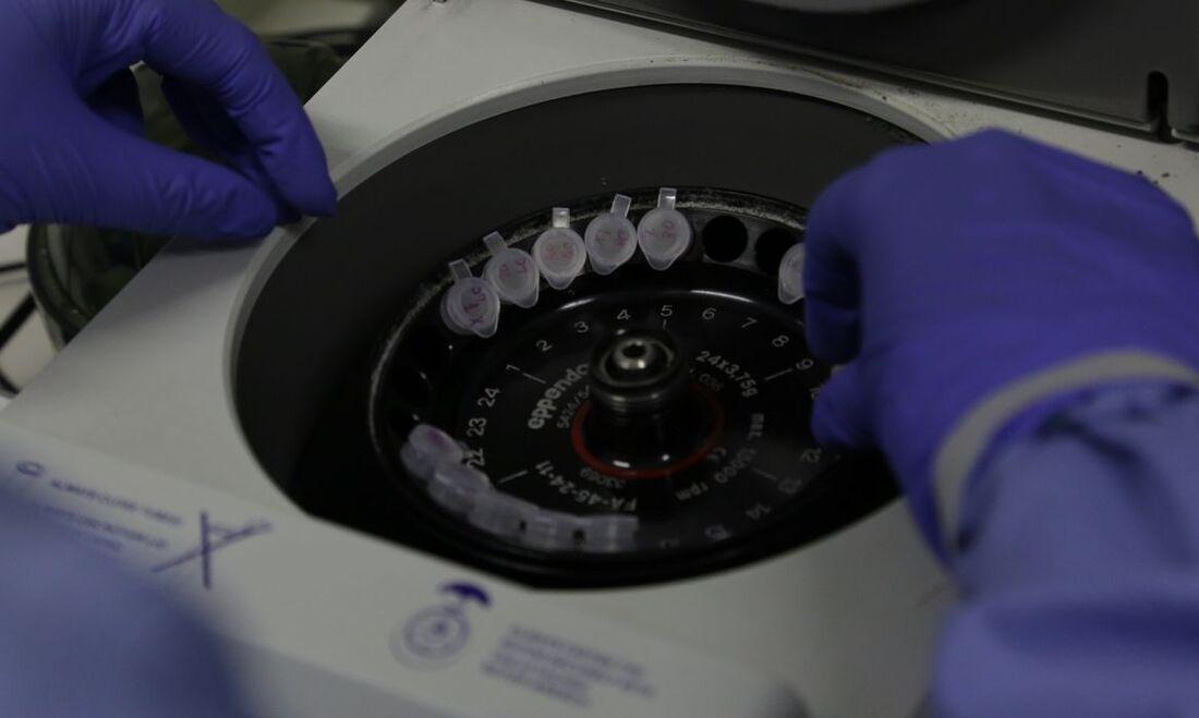 Diagnóstico laboratórial