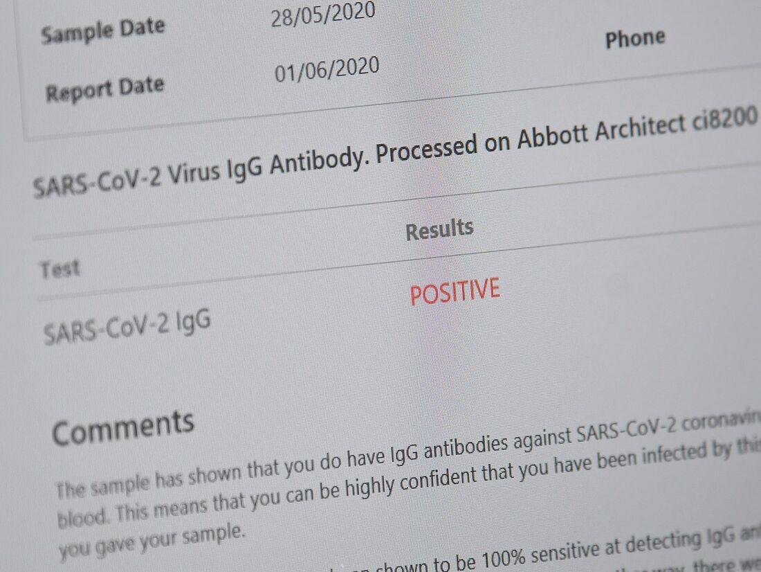Teste positivo para coronavírus