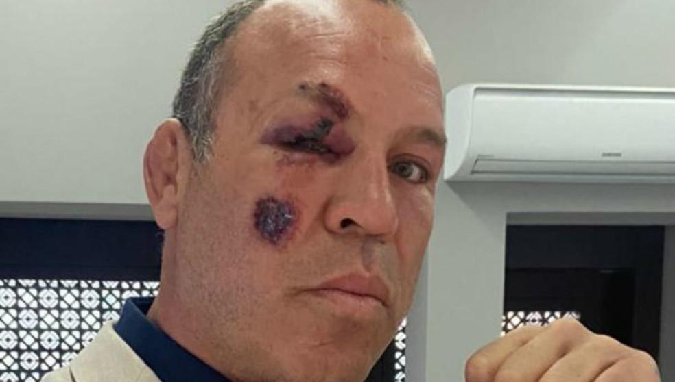 Wanderlei Silva foi atropelado enquanto andava de bicicleta