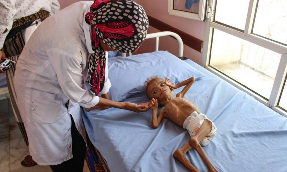 Fome atinge 10 milhões de habitantes do Iêmen