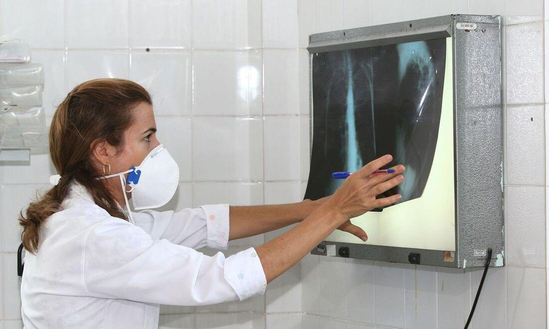 Profissional da saúde observando exames de pulmão