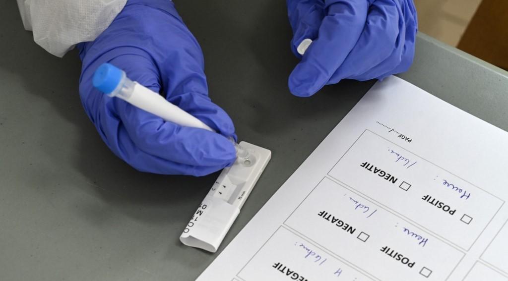 Teste rápido para a detecção de anticorpos para o novo coronavírus