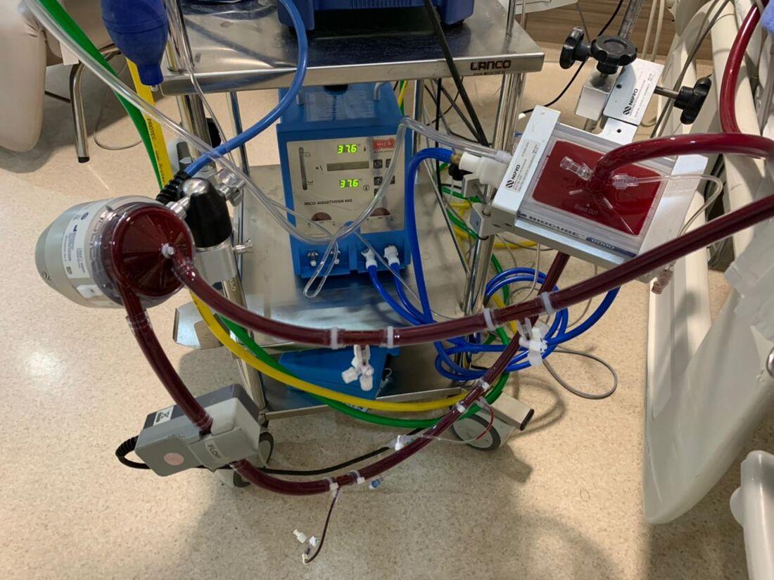 Equipamento para terapia de oxigenação por membrana extracorpórea (ECMO), no Real Hospital Português, no Recife