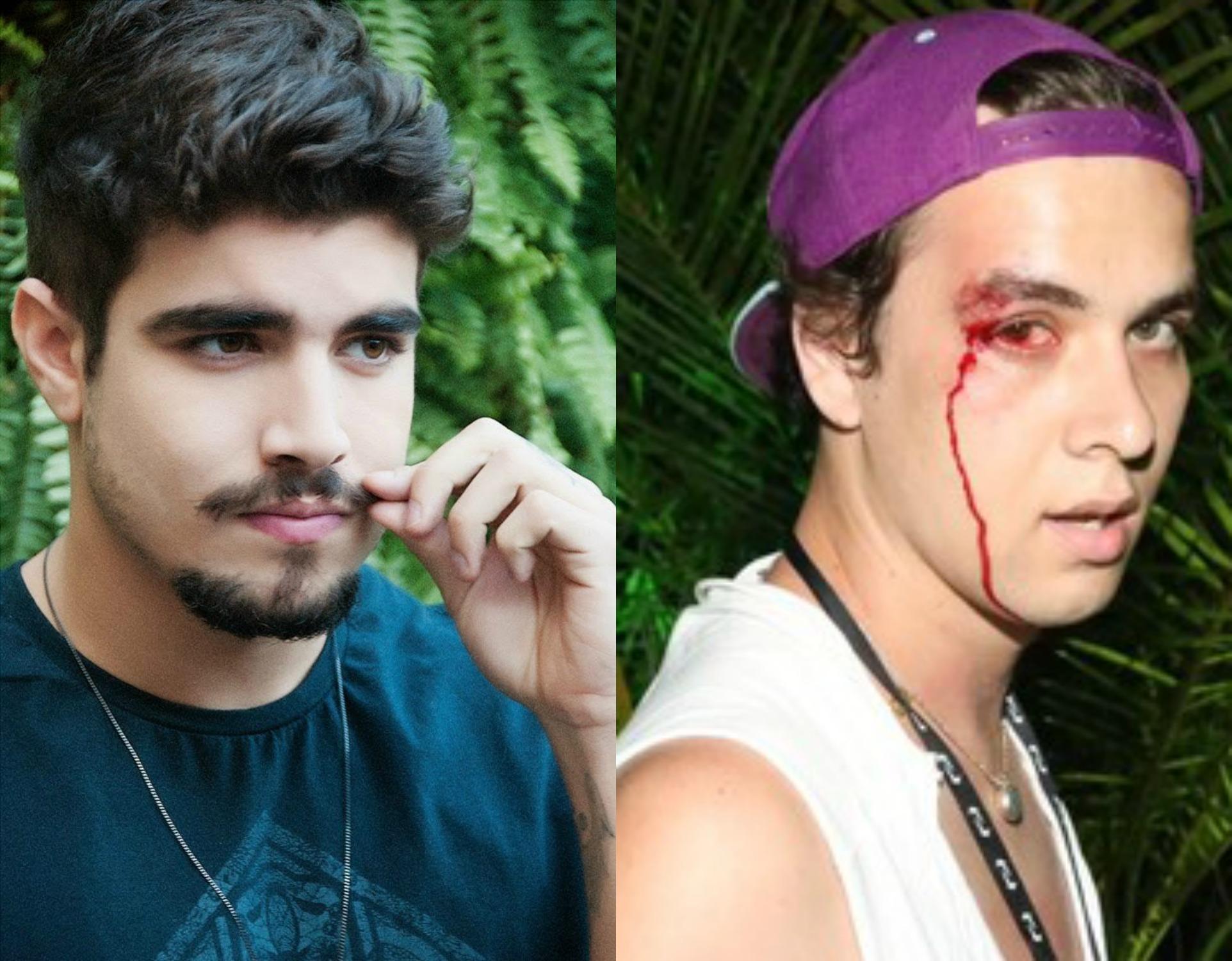 Fotógrafo processa Caio Castro após agressão do ator - Folha PE