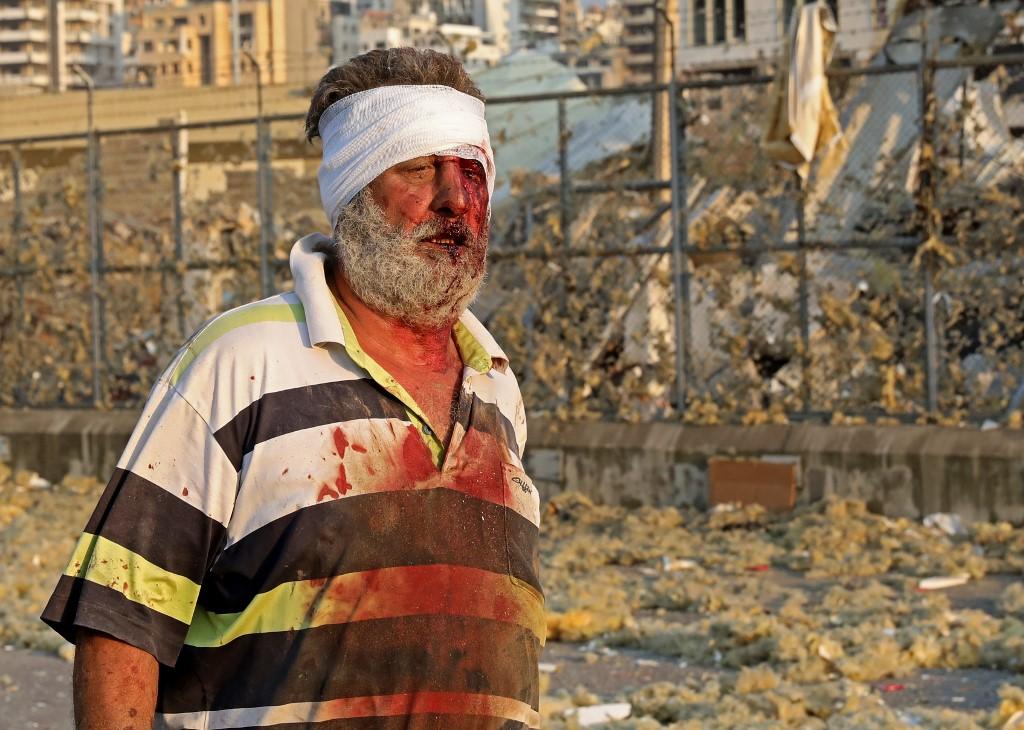 Duas explosões no porto de Beirute deixam dezenas de feridos ...